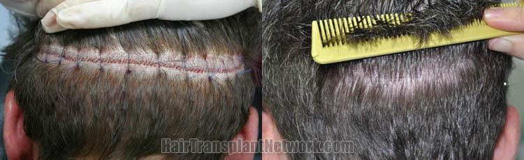 hair-restoration-images-scar-166599
