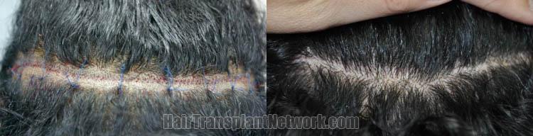 hair-restoration-images-scar-167213