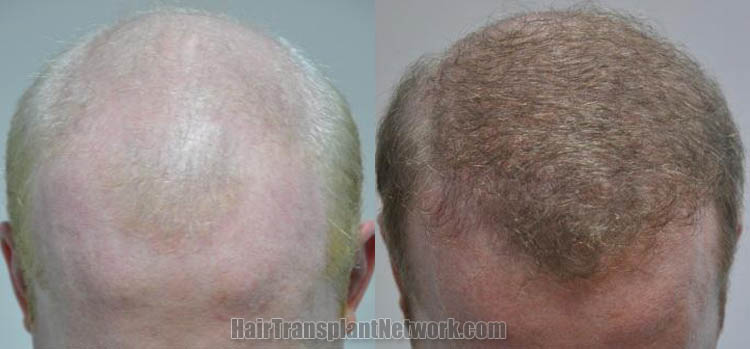 hair-restoration-images-top-170841