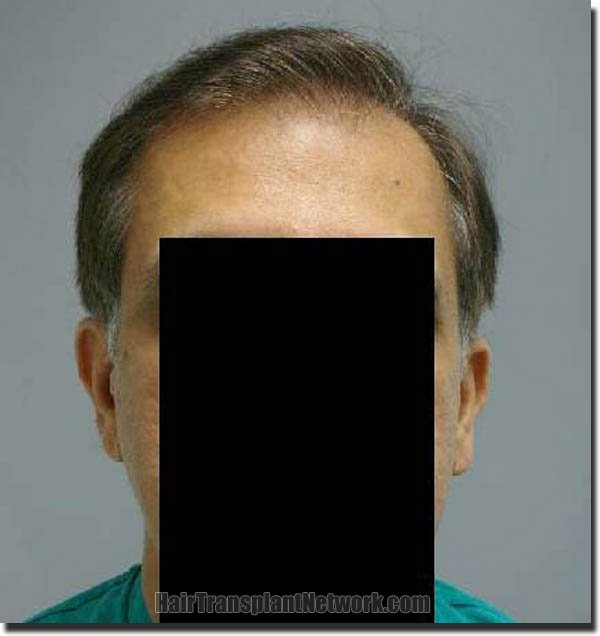 hair-restoration-pathomvanich-3471-after-front