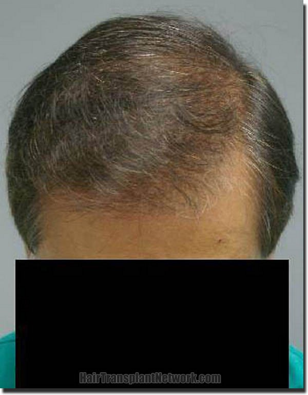 hair-restoration-pathomvanich-3471-after-top