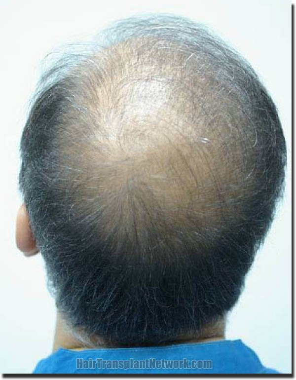 hair-restoration-pathomvanich-3471-before-back