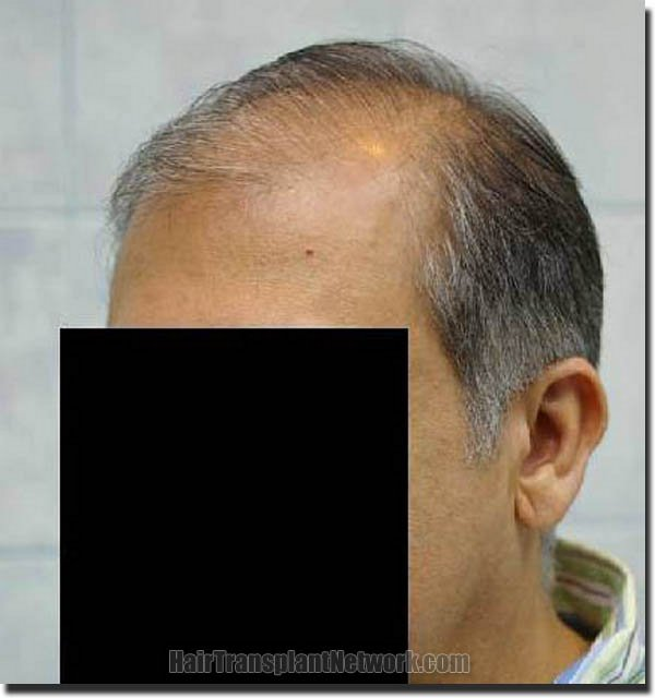 hair-restoration-pathomvanich-3471-before-left