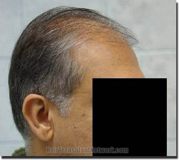 hair-restoration-pathomvanich-3471-before-right