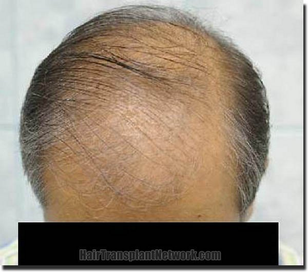 hair-restoration-pathomvanich-3471-before-top