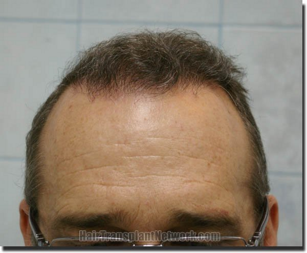 hair-restoration-pathomvanich-4505-after-front
