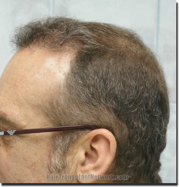 hair-restoration-pathomvanich-4505-after-left