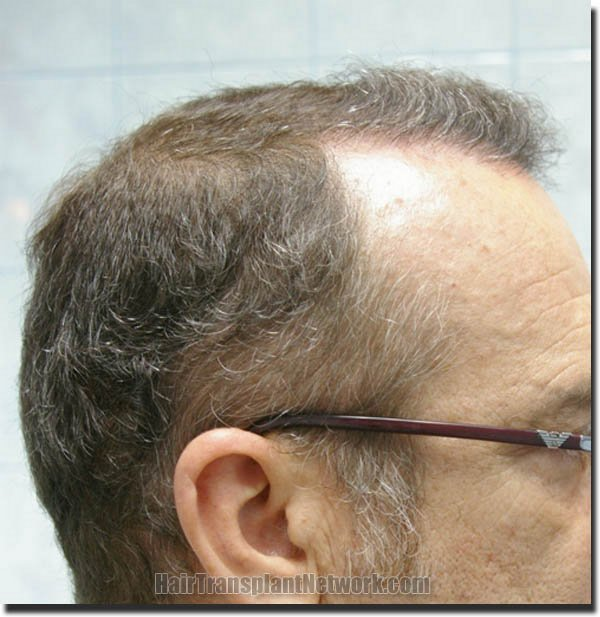 hair-restoration-pathomvanich-4505-after-right