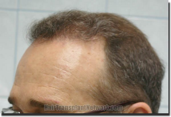 hair-restoration-pathomvanich-4505-after-scar-left