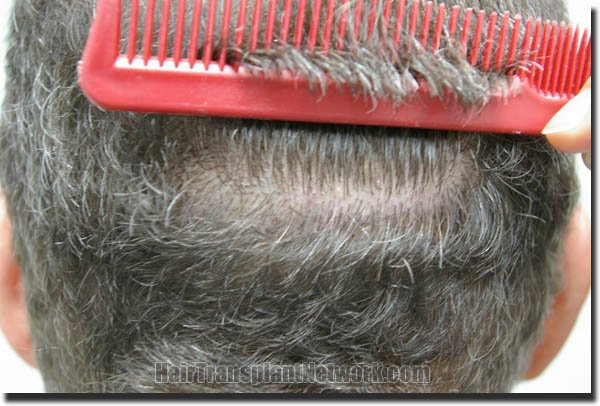 hair-restoration-pathomvanich-4505-after-scar