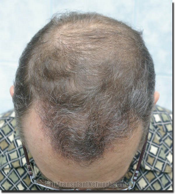 hair-restoration-pathomvanich-4505-after-top