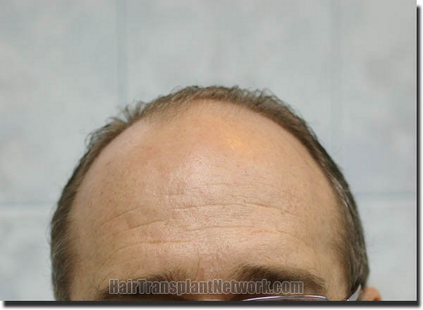 hair-restoration-pathomvanich-4505-before-front