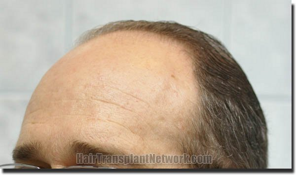 hair-restoration-pathomvanich-4505-before-left-oblique