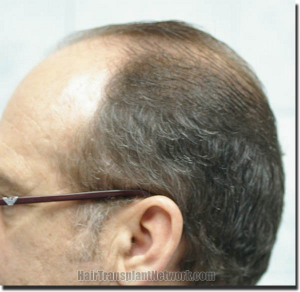 hair-restoration-pathomvanich-4505-before-left