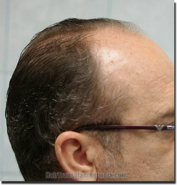 hair-restoration-pathomvanich-4505-before-right