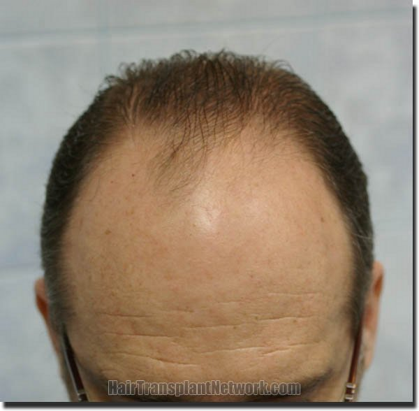hair-restoration-pathomvanich-4505-before-tilt-down