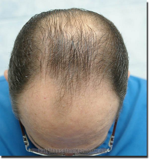 hair-restoration-pathomvanich-4505-before-top