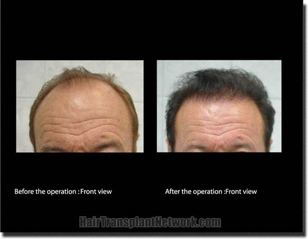 hair-restoration-pathomvanich-7855-before-and-after-front