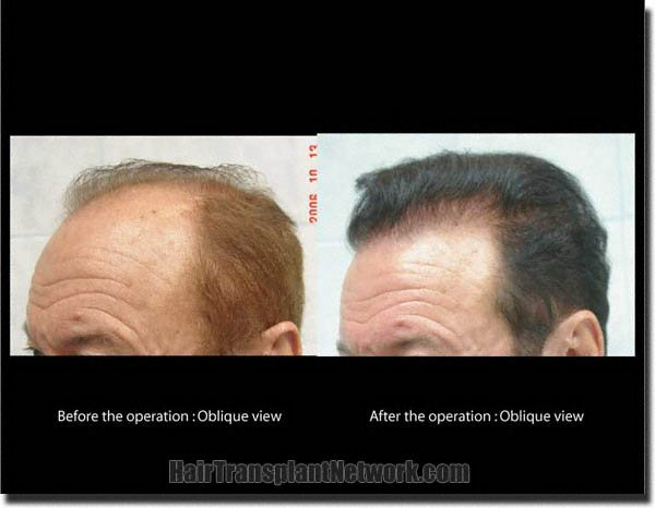 hair-restoration-pathomvanich-7855-before-and-after-left-oblique