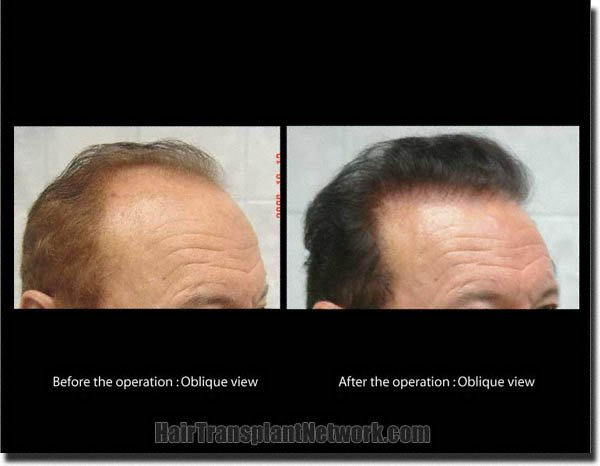 hair-restoration-pathomvanich-7855-before-and-after-right-oblique