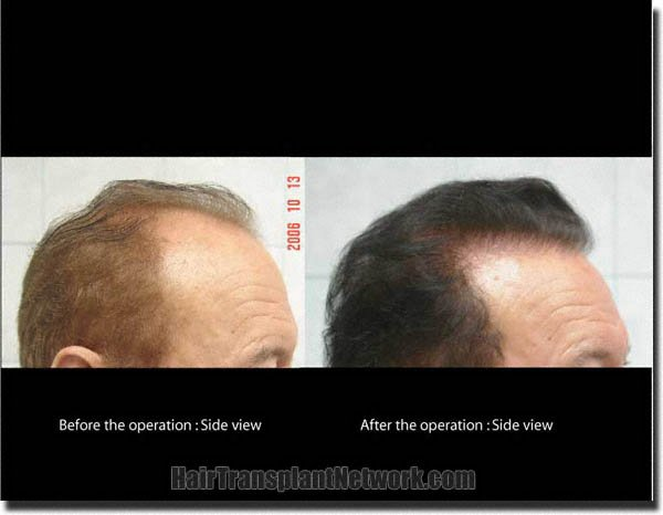 hair-restoration-pathomvanich-7855-before-and-after-right
