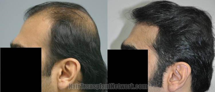 hair-restoration-patient-photo-left-169143