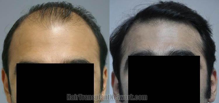 hair-restoration-patient-photos-front-169143