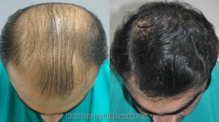 hair-restoration-patient-top-169143