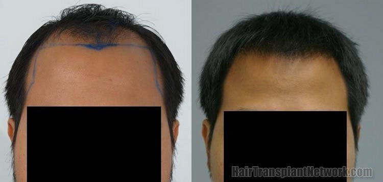 hair-restoration-photo-front-156838