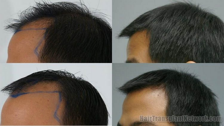 hair-restoration-photo-left-156838