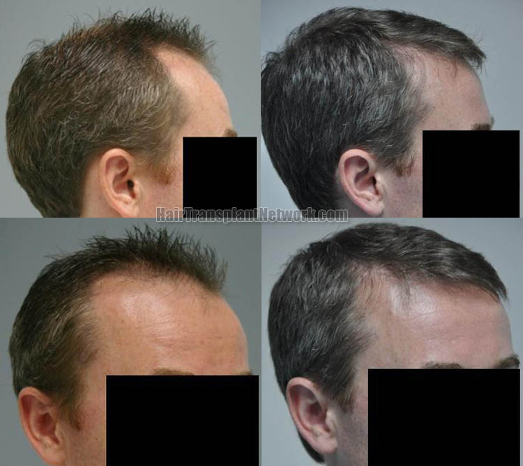 hair-restoration-photo-right-166599