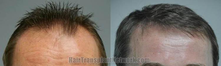 hair-restoration-photos-front-166599