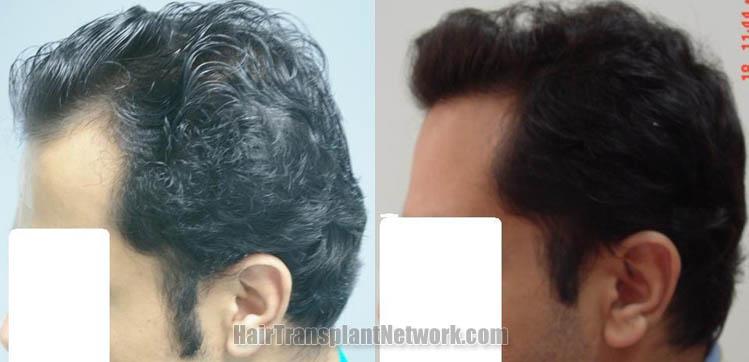 hair-restoration-photos-left-160613