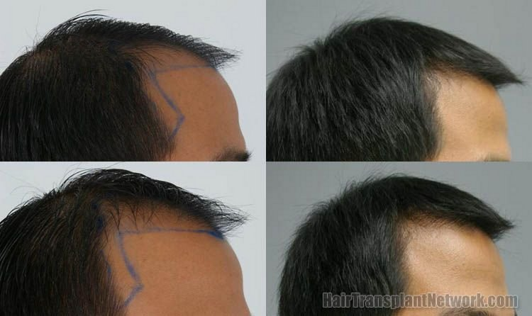 hair-restoration-photos-right-156838