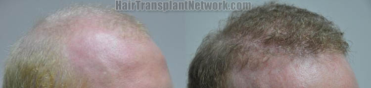 hair-restoration-photos-right-170841