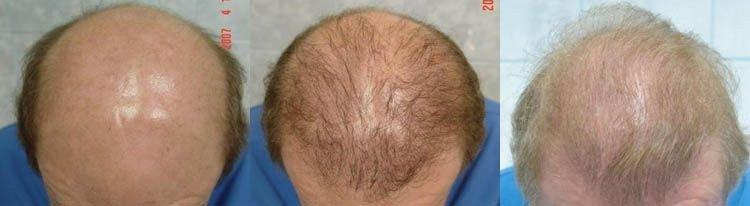 hair-restoration-photos-top-157207