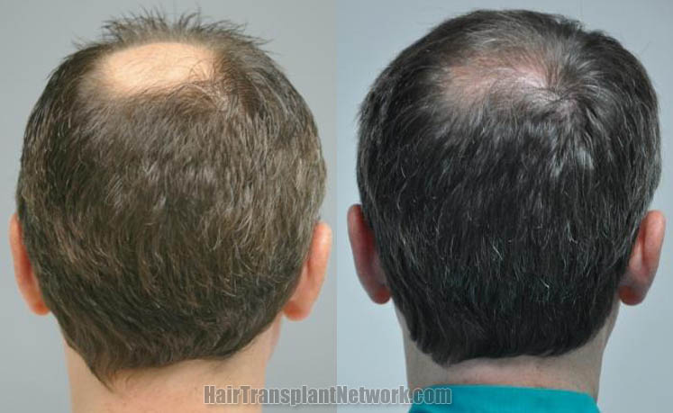 hair-restoration-picture-back-166599