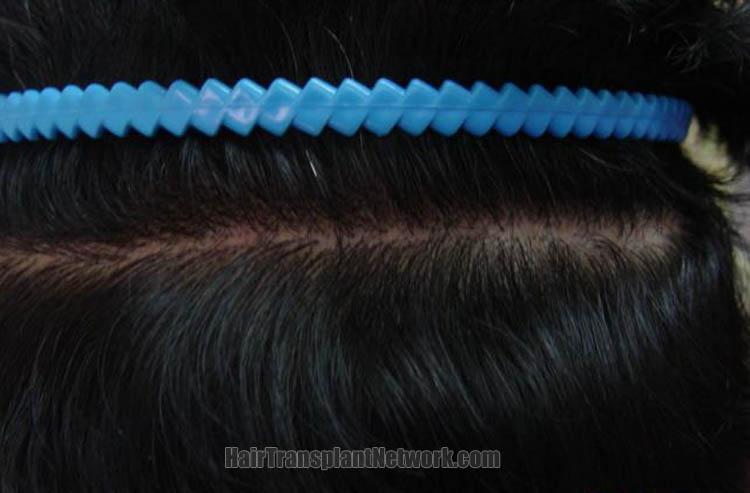 hair-restoration-picture-scar-160613