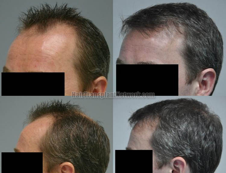 hair-restoration-pictures-left-166599