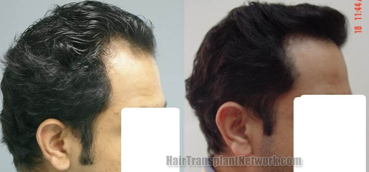 hair-restoration-pictures-right-160613