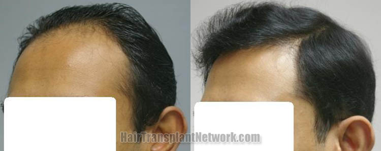 hair-restoration-procedure-photo-left-160988