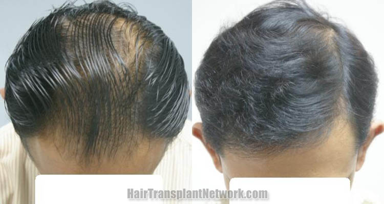 hair-restoration-procedure-photos-top-160988