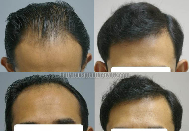 hair-restoration-procedure-pictures-front-160988
