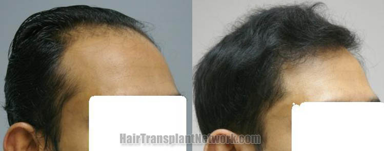 hair-restoration-procedure-right-160988