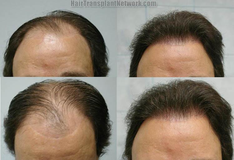 hair-restoration-surgery-front-158882