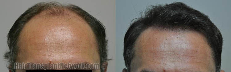hair-restoration-surgery-front-165454
