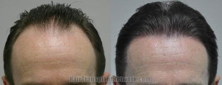 hair-restoration-surgery-front-168056