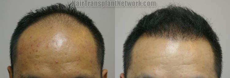 hair-restoration-surgery-image-front-165835