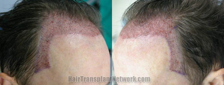 hair-restoration-surgery-image-immpo-168056