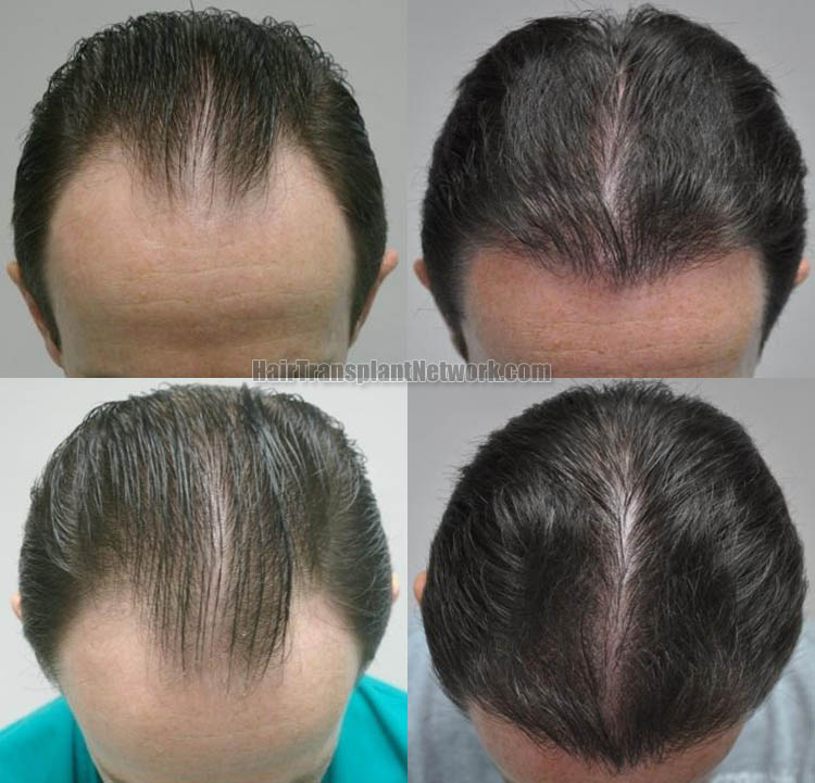 hair-restoration-surgery-image-top-168056